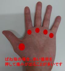 指が引っかかる!? ~ばね指~